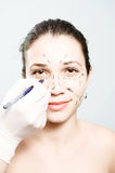 Drawing lines for facial plastic surgery Stock Photo