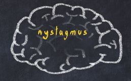 Free Drawing Of Human Brain On Chalkboard With Inscription Nystagmus Royalty Free Stock Image - 156908896