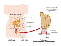 Drawing of rectal pouch after bowel removal. Drawing to show the formation of a false rectal pouch from a section of small intestine, following removal of the Royalty Free Stock Photography