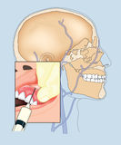 Drawing of skull and gum injection Royalty Free Stock Photography