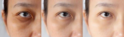 Drei Bilder verglichen Effekt vor und nach Behandlung unter Augen mit Problemen der Augenringe, des Puffiness und der Falten lizenzfreies stockbild