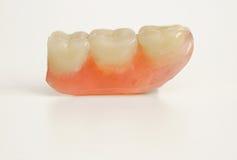 Drei prothetische Zähne Stockfotografie