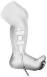 Dren quirúrgico - una pierna y un pie más bajos del ` s del niño Fotos de archivo