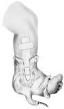 Dren quirúrgico - una pierna y un pie más bajos del ` s del niño Imagen de archivo libre de regalías