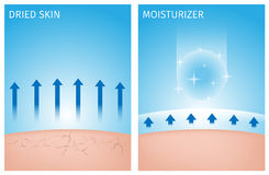 Dried skin and skin with moisturizer , before and after. On blue background royalty free illustration