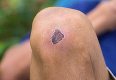 Dried wound on knee Stock Images