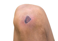 Dried wound on knee Stock Photo