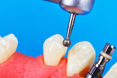 Drill and dental implant. In jaw, close up Stock Image
