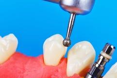 Drillborr och tand- implantat Fotografering för Bildbyråer