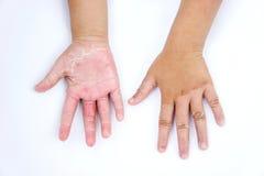 Droge handen, schil, Contactdermatitis, schimmelbesmettingen, Huid inf stock afbeelding