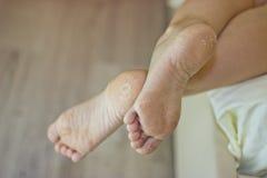 Droge huid van de voeten Voetbehandeling Stock Foto