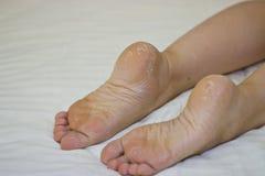 Droge huid van de voeten Voetbehandeling Royalty-vrije Stock Foto's