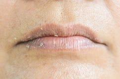 Droge lippen en schil stock afbeeldingen