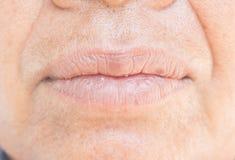Droge lippen en schil stock foto