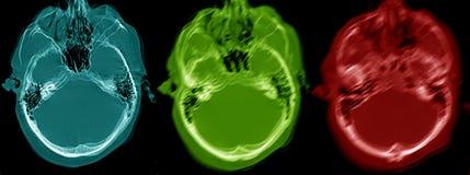 Dronkenschap, CT beeld royalty-vrije stock afbeeldingen