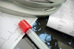 Druk analyse op de achtergrond ICU.Medical uit. Stock Foto's