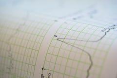 Druk die van cardiogramrapport uit uit Elektrocardiograaf in arbeidsafdeling komen stock foto