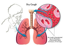 Dry cough royalty free illustration