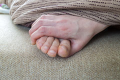 Dry cracked skin of woman feet in bed. Foot treatment. Royalty Free Stock Photo