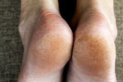 Dry cracked skin of woman feet in bed. Foot treatment. Stock Image
