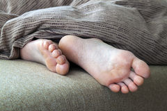 Dry cracked skin of woman feet in bed. Foot treatment. Stock Photography
