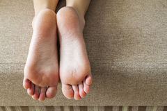 Dry cracked skin of woman feet in bed. Foot treatment. Stock Images