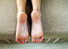 Dry cracked skin of woman feet in bed. Foot treatment. Royalty Free Stock Image