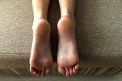 Dry cracked skin of woman feet in bed. Foot treatment. Royalty Free Stock Images