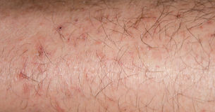 Dry cracking skin in the winter royalty free stock photography
