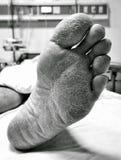 Dry foot skin Royalty Free Stock Photo