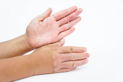 Dry hands, peel, Contact dermatitis, fungal infections, Skin inf. The Dry hands, peel, Contact dermatitis, fungal infections, Skin infections from exposure Royalty Free Stock Photos