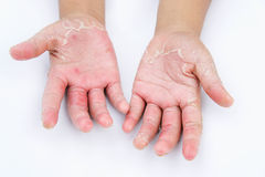 Dry hands, peel, Contact dermatitis, fungal infections, Skin inf. The Dry hands, peel, Contact dermatitis, fungal infections, Skin infections from exposure Stock Photos