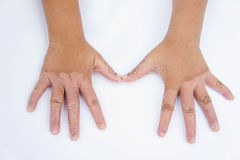 Dry hands, peel, Contact dermatitis, fungal infections, Skin inf. Ections from exposure Stock Photos
