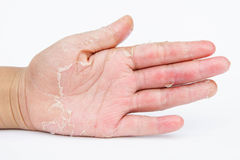 Dry hands, peel, Contact dermatitis, fungal infections, Skin inf. Ections from exposure Royalty Free Stock Image