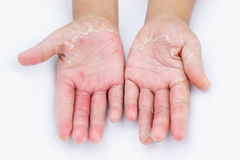 Dry hands, peel, Contact dermatitis, fungal infections, Skin inf. Ections from exposure Stock Images