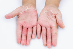 Dry hands, peel, Contact dermatitis, fungal infections, Skin inf. Ections from exposure Royalty Free Stock Photo