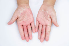 The Dry hands, peel, Contact dermatitis, fungal infections, Skin inf. Dry hands, peel, Contact dermatitis, fungal infections, Skin infections from exposure Royalty Free Stock Photography