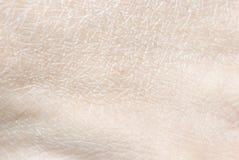Dry human skin Royalty Free Stock Image