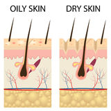 Dry and oily skin. Stock Photo