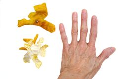 Dry skin. Hand and orange peel white  background. psoriasis dryness condition Stock Photos