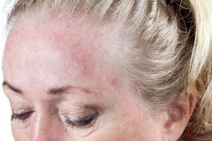 Dry skin. Mature woman's very dry, flaky skin stock images