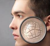 Dry skin Stock Image
