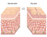 Dry skin. Anatomy of human epidermis with stratum corneum flaking off in dry skin stock illustration