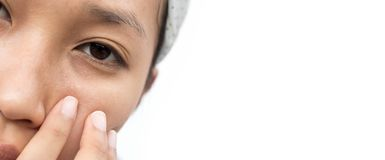 Dry skin. Around the eyes of a woman royalty free stock photos