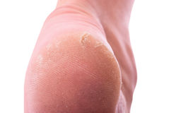 Dry skin. Closeup of a person with dry skin on heel . Isolated on white background. With clipping path inckuded Stock Image
