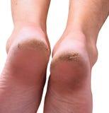 Dry skin Stock Photos