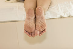 Dry skin of the feet. Foot Treatment. Royalty Free Stock Image