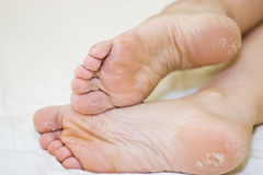 Dry skin of the feet. Foot Treatment. Stock Images