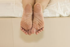 Dry skin of the feet. Foot Treatment. Stock Image