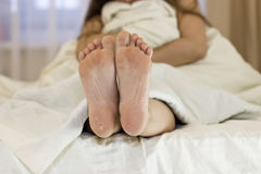 Dry skin of the feet. Foot Treatment. After using the mask for skin rejuvenation. Girl sitting on the bed, feet in focus Stock Photo